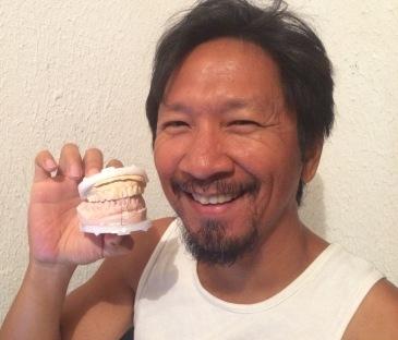 Trins dental impression